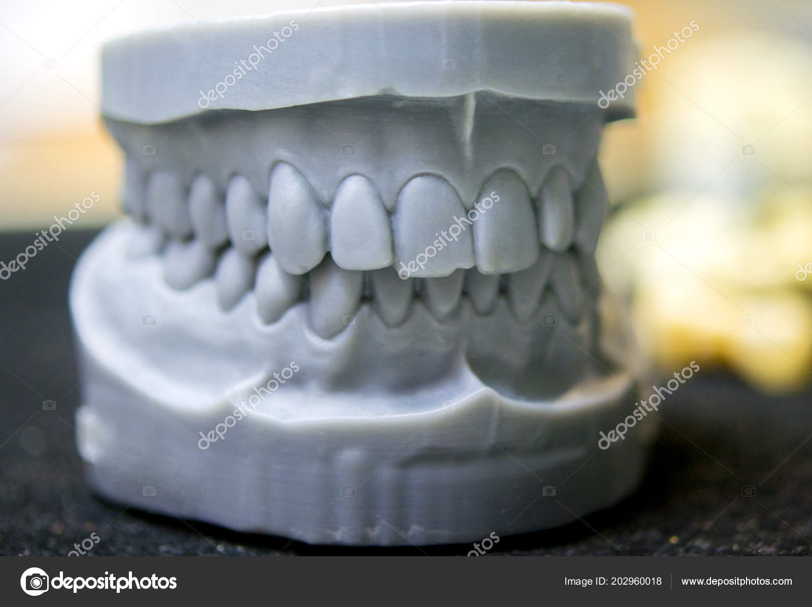 Upper and lower jaw of a man printed on a 3d printer of