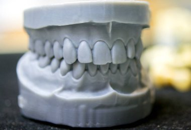 Upper and lower jaw of a man printed on a 3d printer of photopolymer.