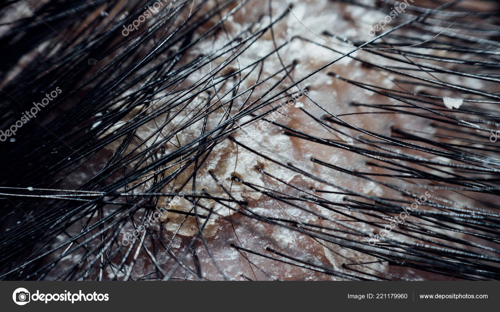 Μαύρο τριχωτό σκουλήκι στον ξύλινο κορμό Εκπαίδευση οικολογίας.