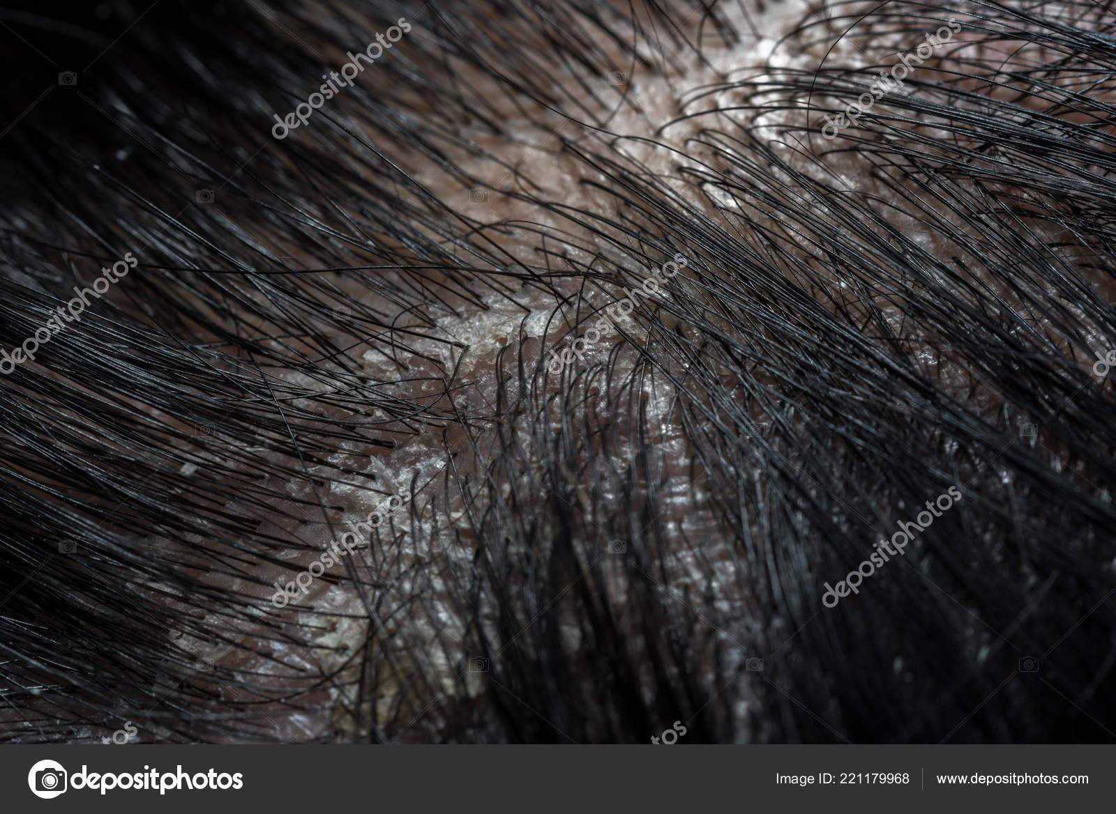 τριχωτό μαύροι μεγάλο μαύρο λεία μαύρο πουλί