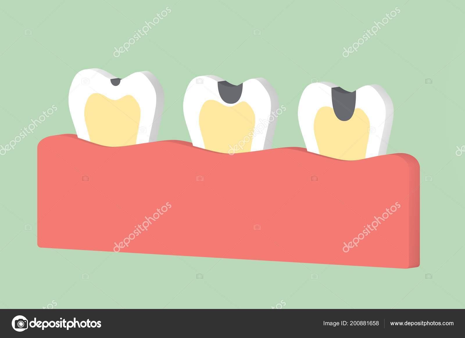 Passo Dente Decadência Dental Dos Desenhos Animados Render