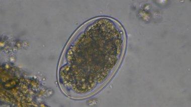 Macro Hookworm eggs parasite in stool examination.