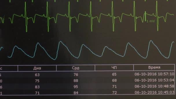 Cardiogram ritmus, szív- és impulzus kép monitoron működés közben.