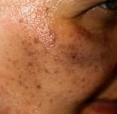 Pigmentové skvrny na obličeji. Pigmentace na tvářích