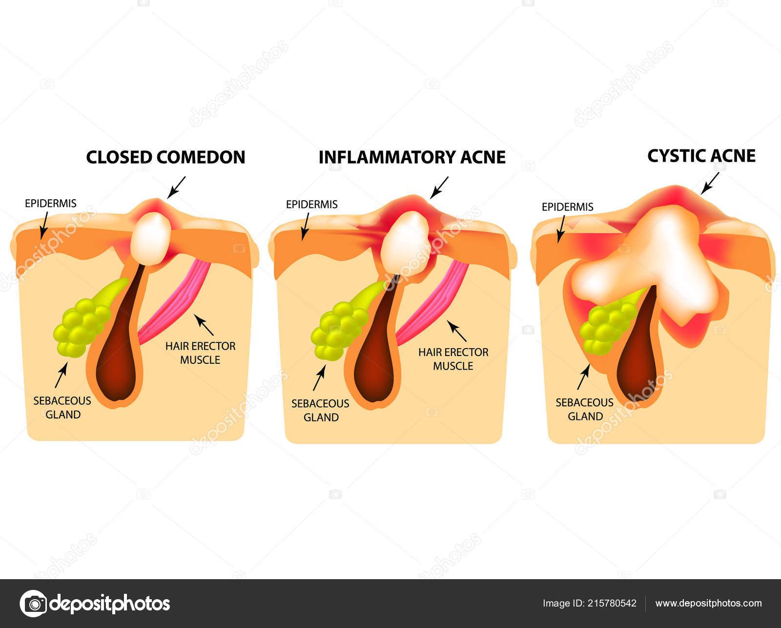 cystisk akne
