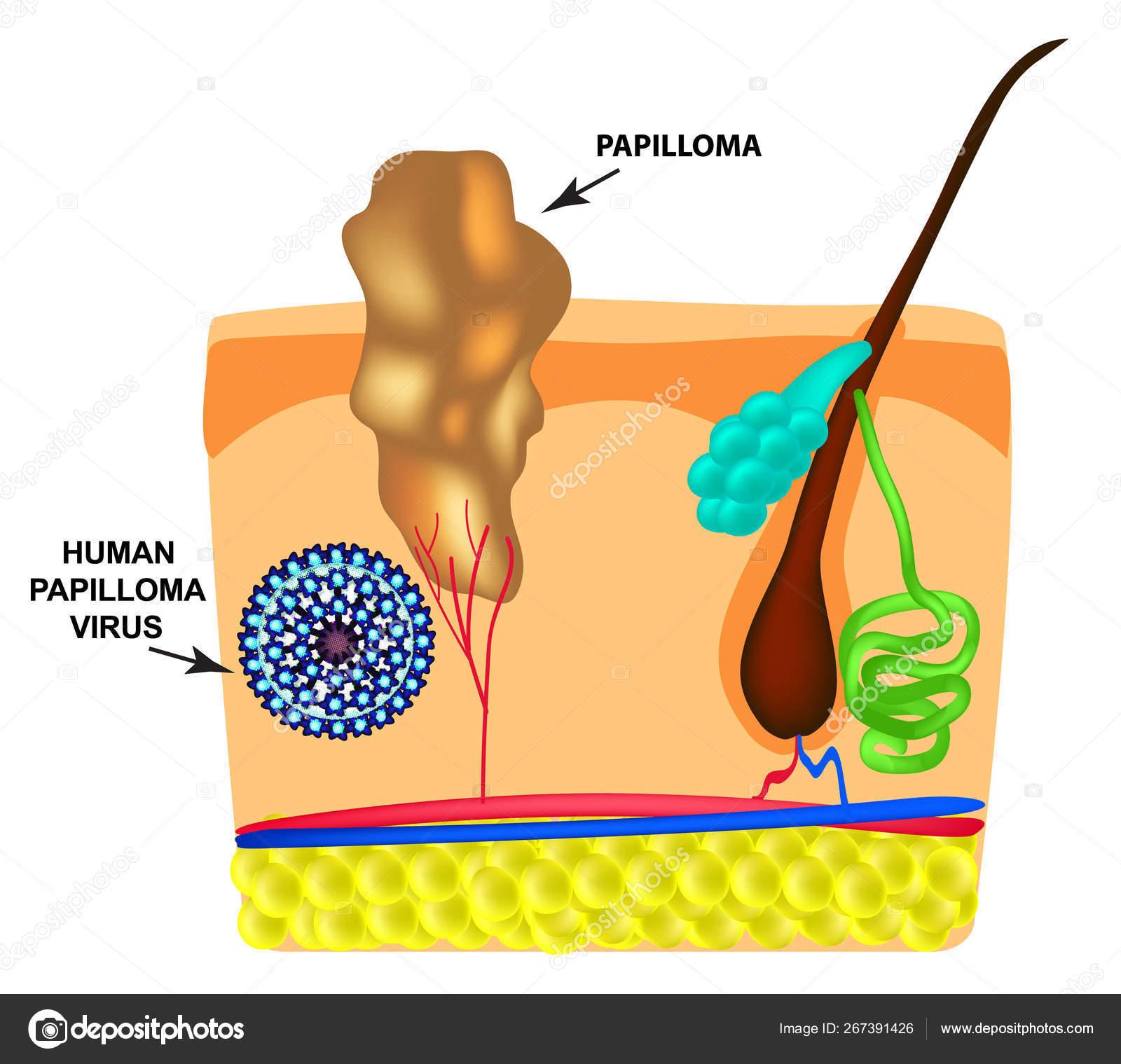 humán papillomavírus po polsku papilloma vírus hazudik