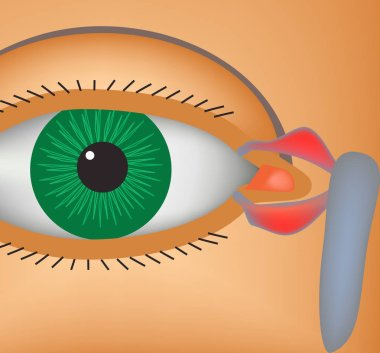 Canaliculitis. Inflammation of lacrimal canals. The structure of the eye. Infographics. Vector illustration.
