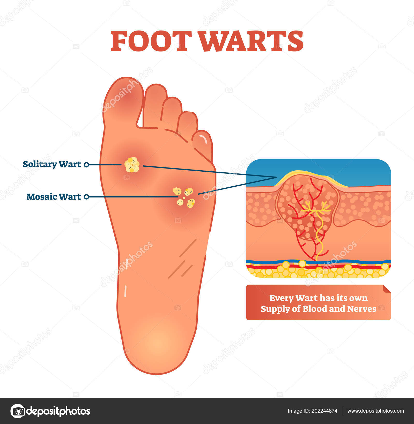 Magnificent Foot Warts Vector Illustration Medical Scheme With Solitary And Wiring 101 Archstreekradiomeanderfmnl