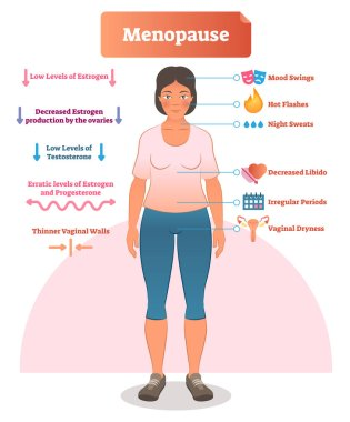 Menopause labeled vector illustration. Medical scheme and diagram with list of estrogen, ovaries, testosterone and progesterone symptoms. Anatomical explanation set.