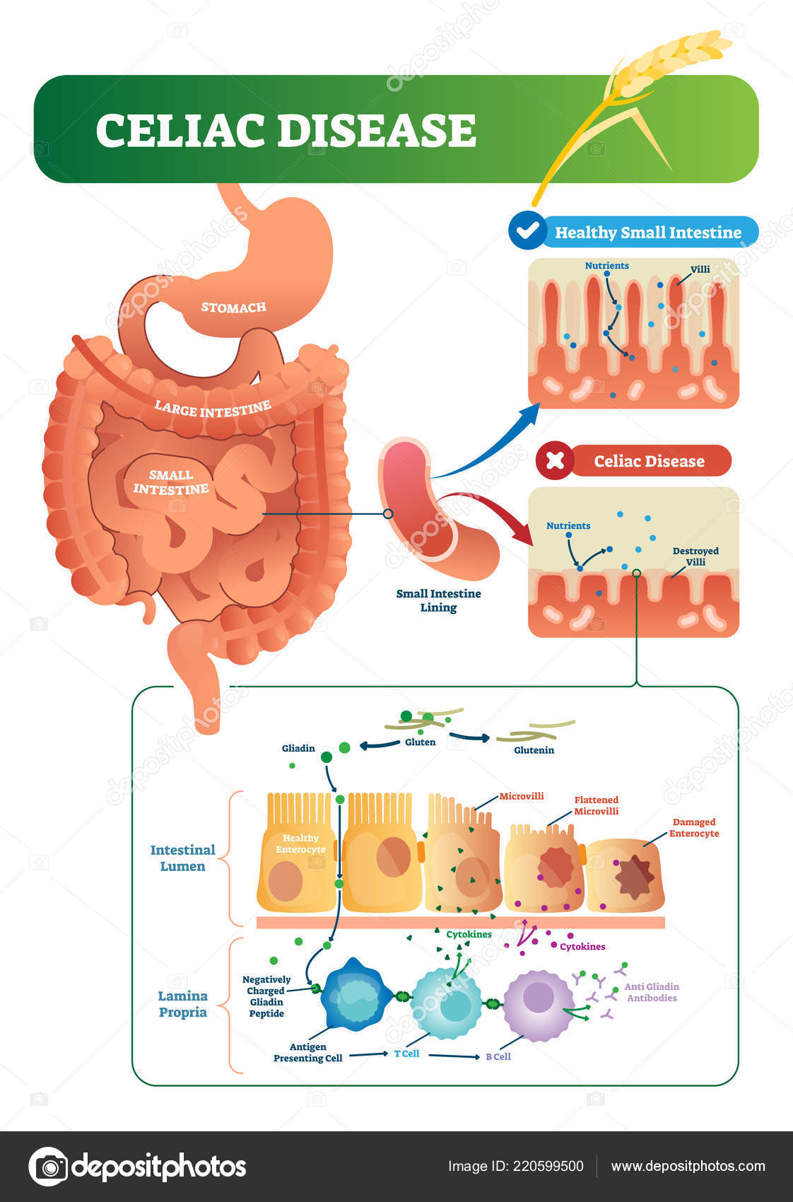 celiac disease vector illustration labeled diagram with its  celiac disease vector illustration labeled diagram with its structure autoimmune illness in stomach and intestine scheme with nutrients, healthy and