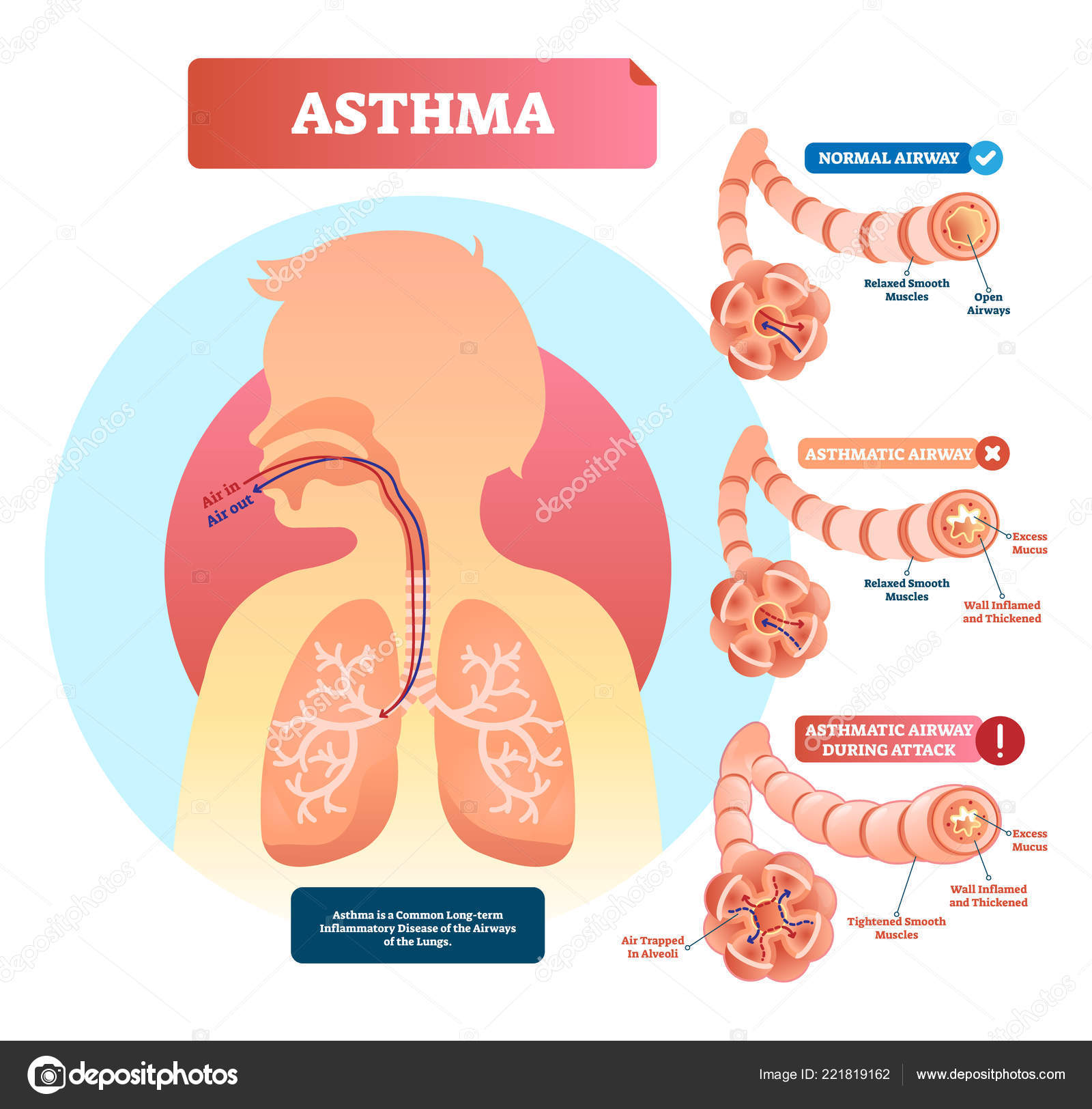 lungs and bronchi disease with breathing problems diagram  asthmatic and  normal airway cross section with labeled structure and symptoms