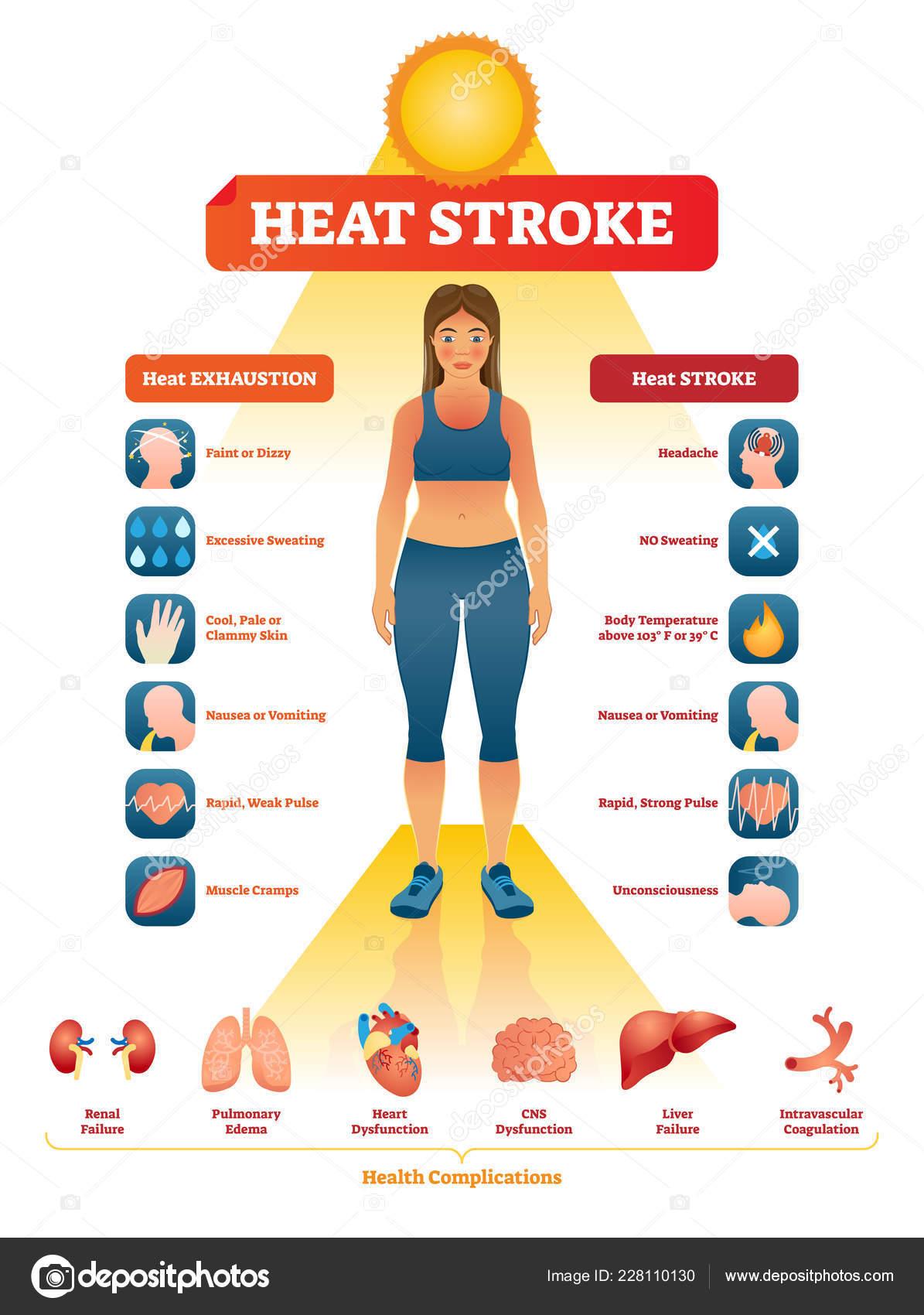 depositphotos_228110130 stock illustration heat stroke vector illustration exhaustion heat stroke vector illustration exhaustion symptoms labeled medical
