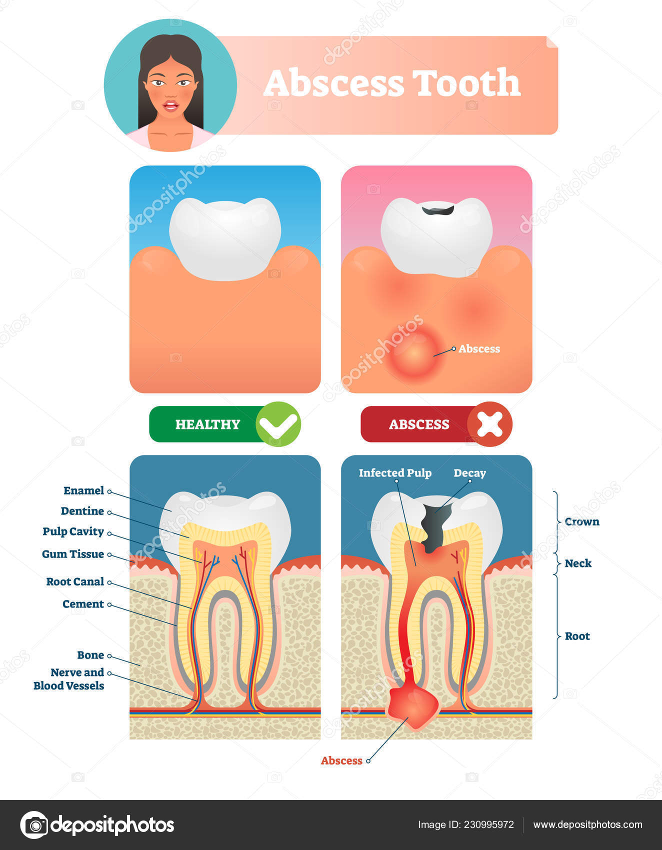 abscess tooth vector illustration  labeled medical diagram with structure   compared isolated infected root canal with healthy  personal oral mouth  hygiene