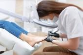 Podologe Arzt in Weiß macht Politur Verfahren für Fuß.