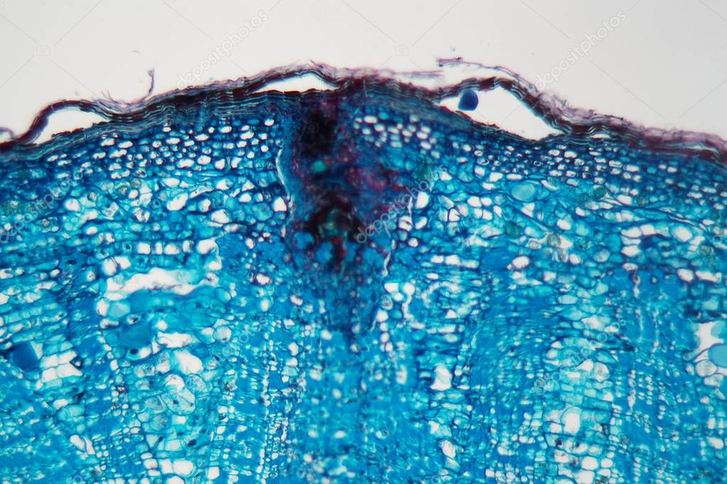 Cells of a plant stem with a disease under a microscope