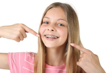 Young smiling girl with dental braces pointing fingers at teeth on white background