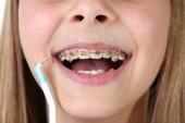 Mladá dívka s rovnátky a kartáček na zuby
