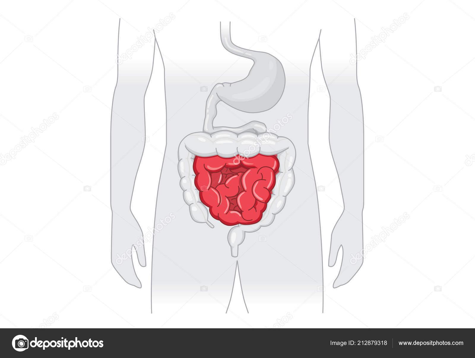 Illustration Abnormal Symptom Human Small Intestines Disease