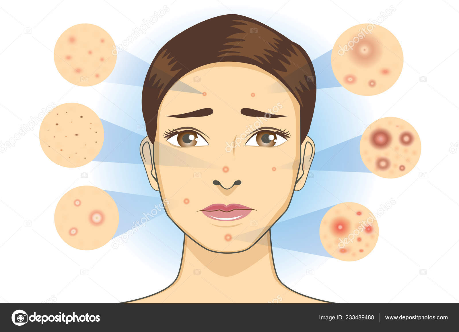 all type acne icon facial skin woman illustration dermatology Epidermis Diagram all type acne icon facial skin woman illustration dermatology diagram \u2014 stock vector