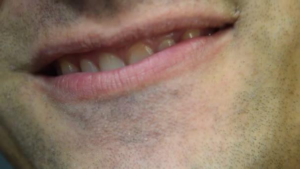 Gebrochener Zahn. gebrochener oberer Schneidezahn im Mund eines Mannes. Mann zeigt dem Zahnarzt Mundhöhle Behandlung eines gebrochenen Zahnes.