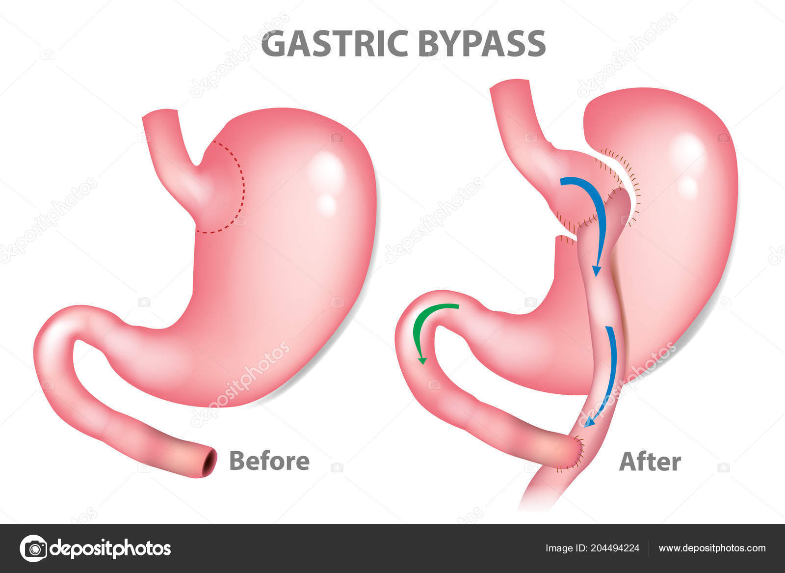 Gastric Bypass Surgery Rny Roux Mini Gastric Bypass — Vector de ...