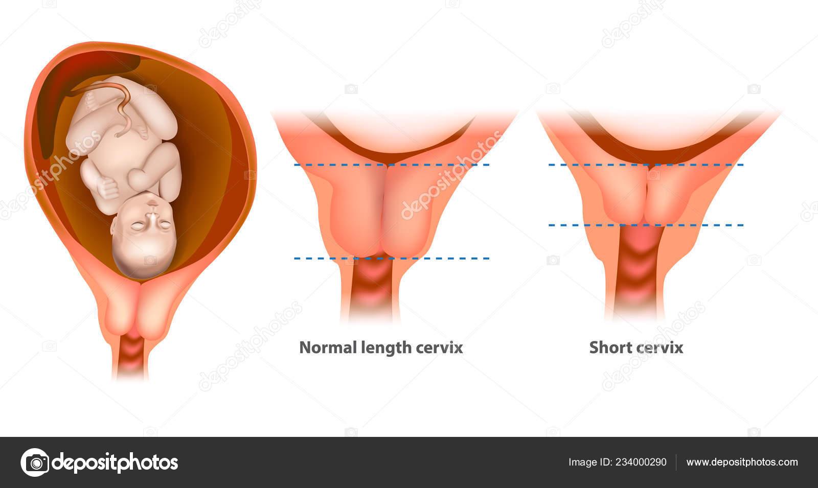 Länge Gebärmutterhals 37 Ssw