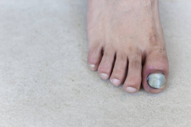 Human male foot with bruised black on toe nails