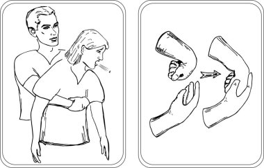 Man stands behind the conscious victim with his hands in the proper position on the victim's abdomen to perform the Heimlich maneuver. The position of the arms at Heimlich maneuver.