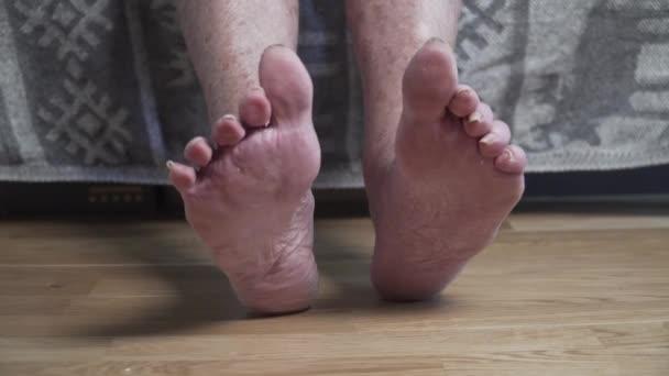 Bolavé nehty na nohou zblízka nerozeznatelná osoba, staříku. Chudák ženská, lidská noha, vypadá děsivě a hrozně s dlouhými nehty. Vrásčité skvrnité nohy seniorka