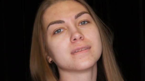 Portrait Of A Pretty Young Girl Model With Acne Problematic Skin