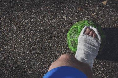 Sports injury. The football player broke his leg.