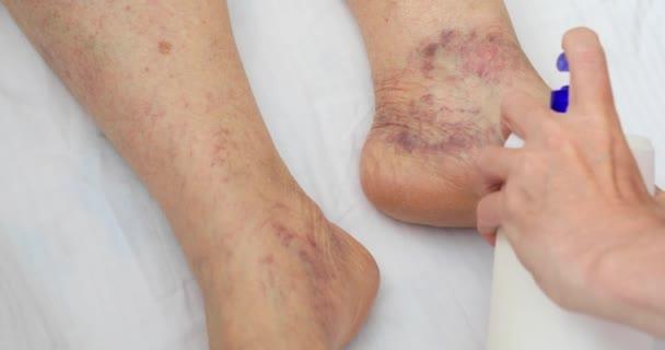 Senior Bein mit venöser Insuffizienz