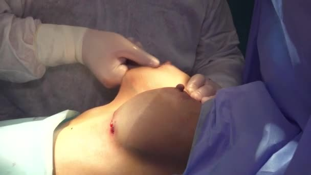 Surgical breast augmentation. Installation of a breast implant. Breast augmentation surgery in the operating room surgeon tools implant.