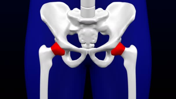 Gelenkerkrankungen. rotes Blinzeln auf den Knochen. Schlupflöcher. luma matt. 3D-Darstellung.