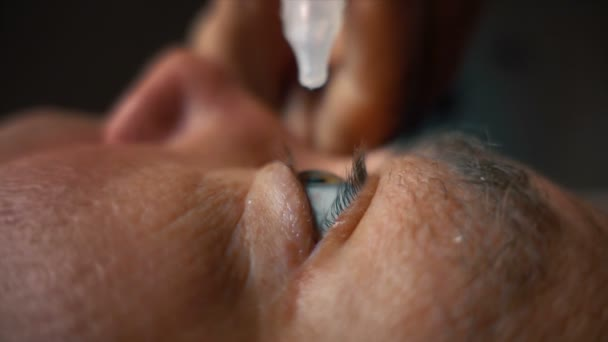 adult man pouring eye drop in blue eye, close-up