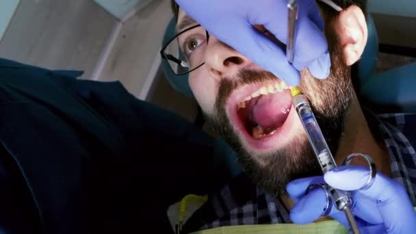 Narkoseinjektion in den Zahn des Patienten. Mann mit offenem Mund bei Zahnbehandlung