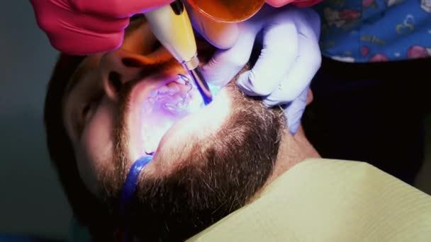 Nahaufnahme des Patienten in der Zahnklinik. Zahnarzt ultraviolettmann zahn, um einen Zahn zu füllen