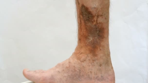Human skin disease. Person s foot that is affected by dermatological skin disease with scars, ulcers and pigment spots. Perhaps this is varicose veins on the leg.