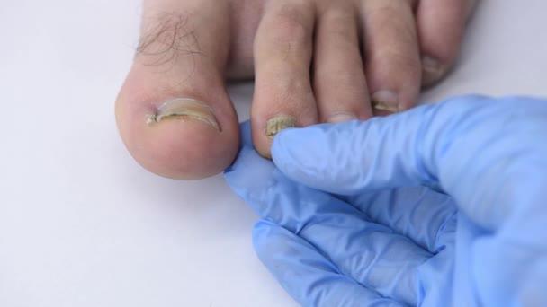 Nahaufnahme der Hand eines Arztes, der einen deformierten, schmutzigen Nagel untersucht, der sich vom Fuß eines Mannes löst