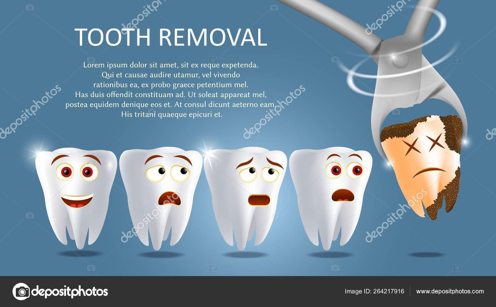 ᐈ Wisdom Teeth Extraction Stock Pictures Royalty Free Wisdom Tooth Extraction Images Download On Depositphotos