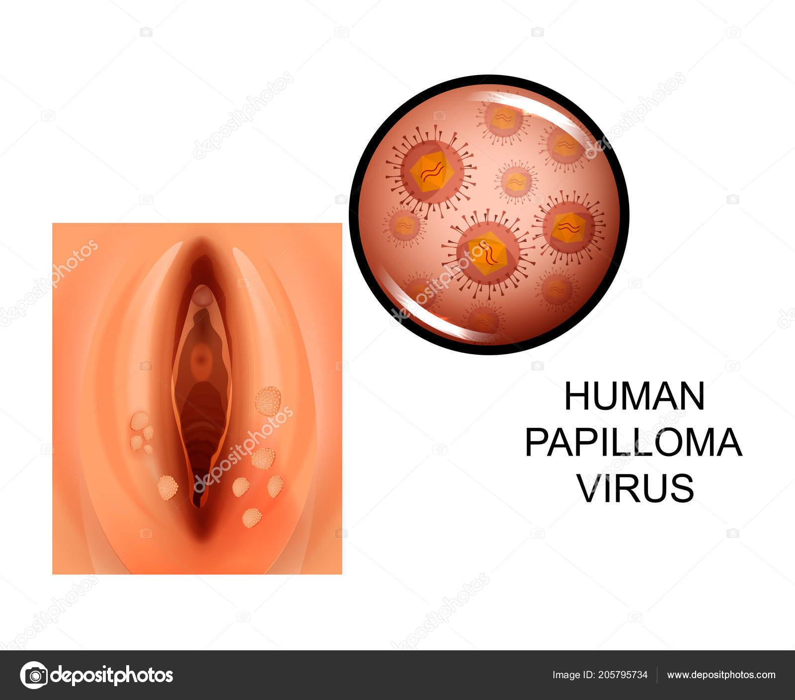 humán papillomavírus po polsku vírusos papilloma icd 10