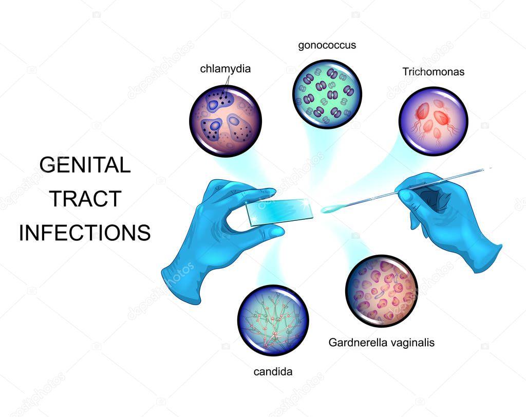 Gonococcus és trichomonas