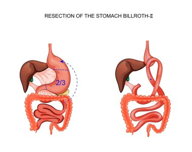 scheme of resection of the stomach Billroth 2
