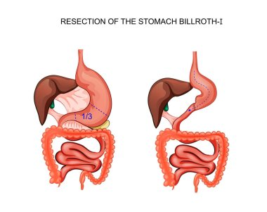 scheme resection of the stomach Billroth 1