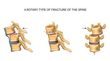 rotational type of vertebral fracture