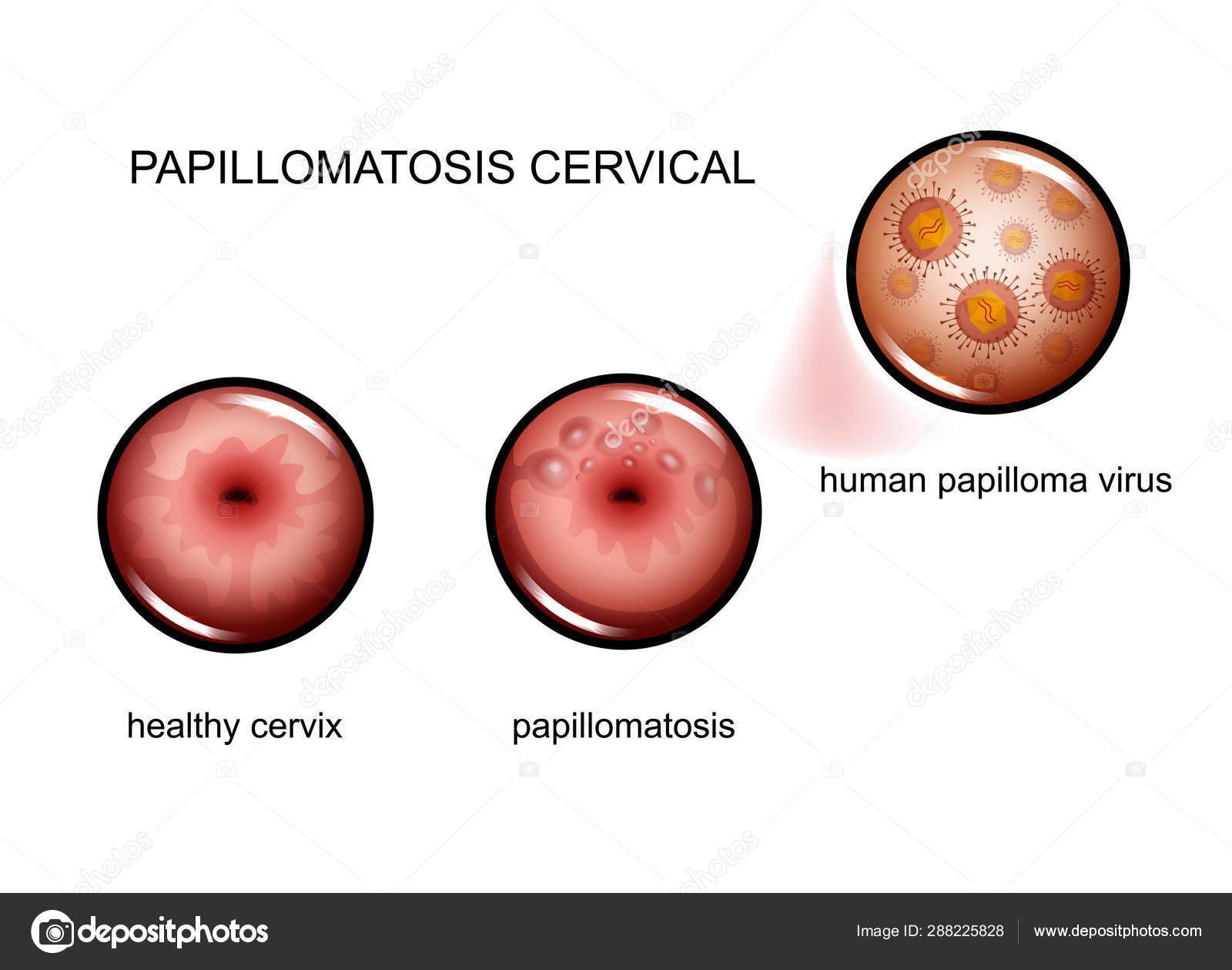 humán papillomavírus po polsku
