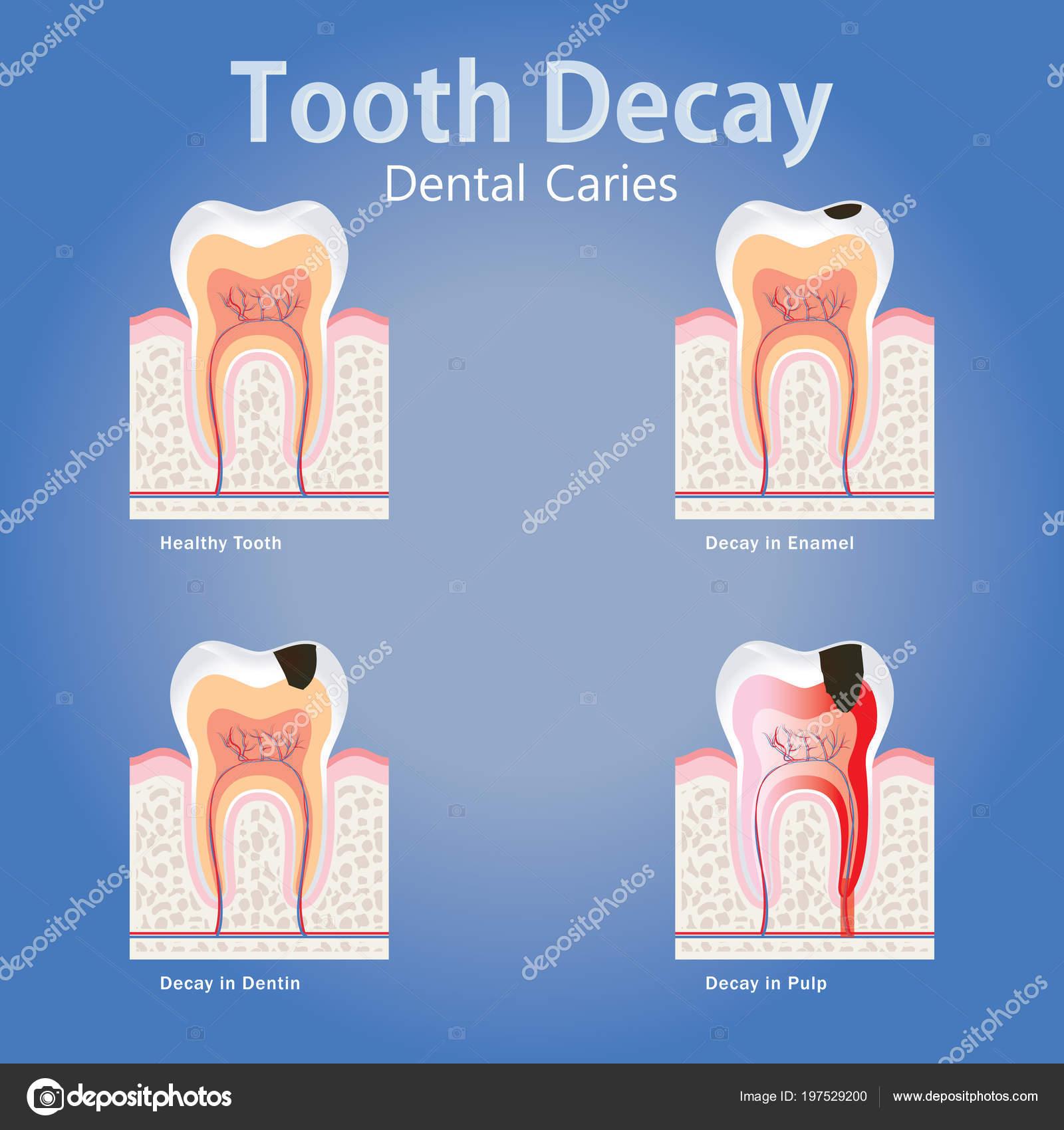 Atractivo Anatomía Dental Y Fisiología Cresta - Anatomía de Las ...