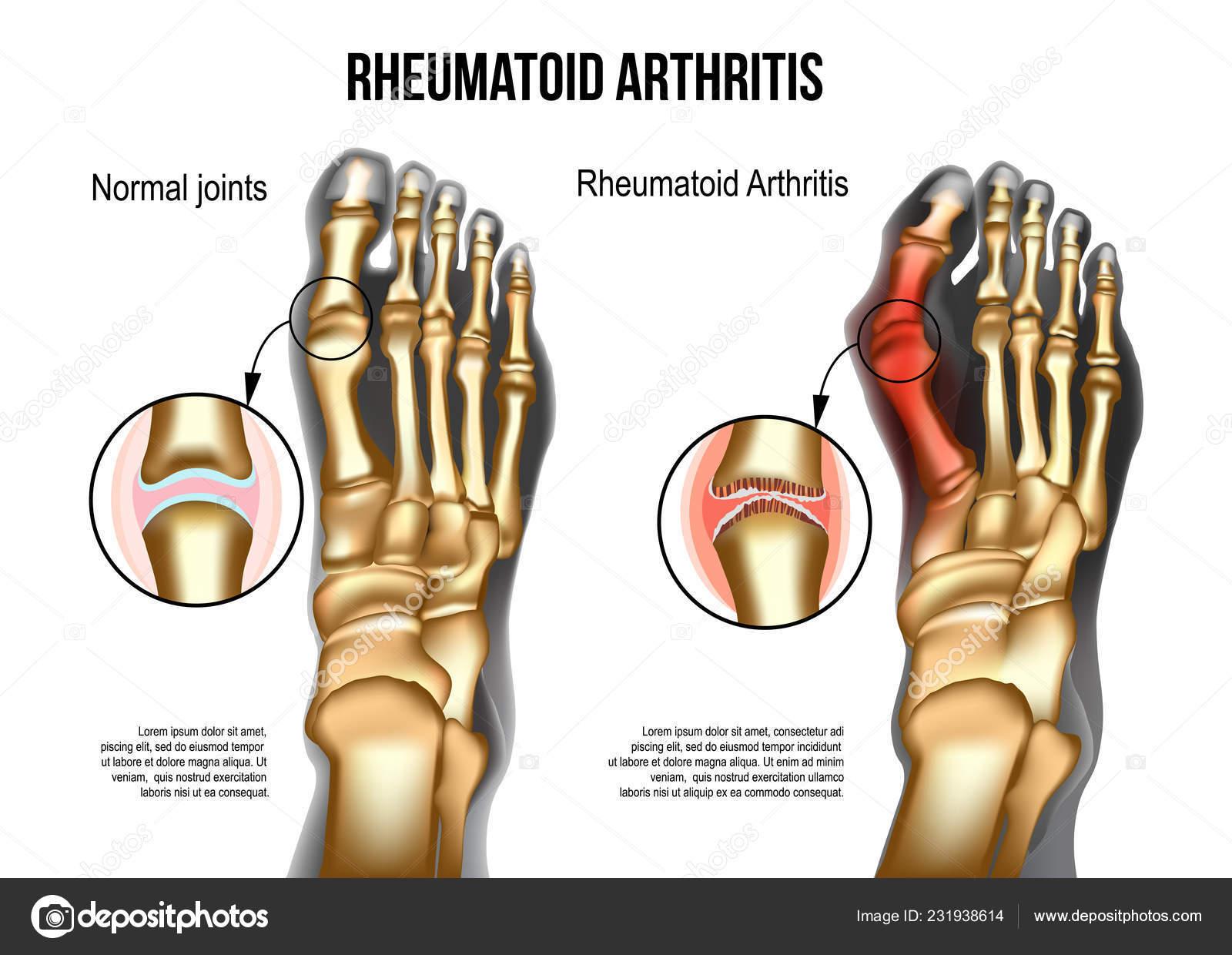 Arthritis (Gelenkentzündung)