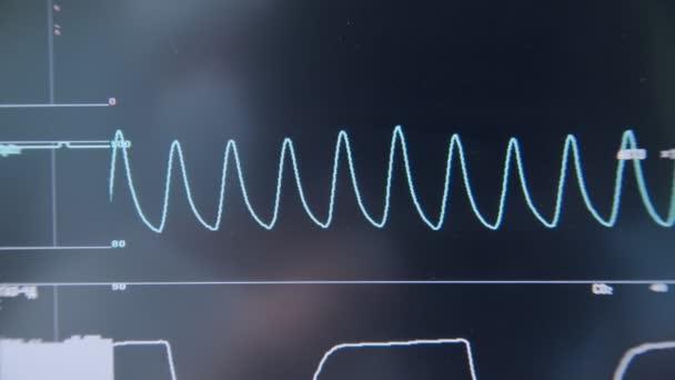 Monitore von modernen medizinischen Geräten mit EKG des Patienten auf Intensivstation