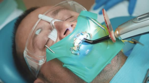 View of dental curing light using for teeth treatment